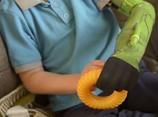 Jacob, el joven ingles que tiene el mismo brazo que Hulk